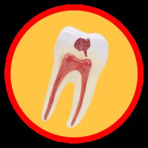 Kleasyczna metoda leczenia zębów- leczenie kanałowe.